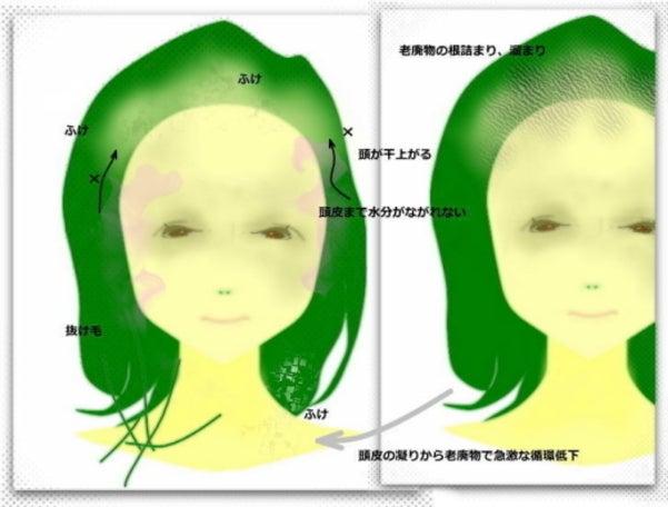 急に薄毛になる、頭皮のふけ、髪ツヤなくなる ケア改善方法