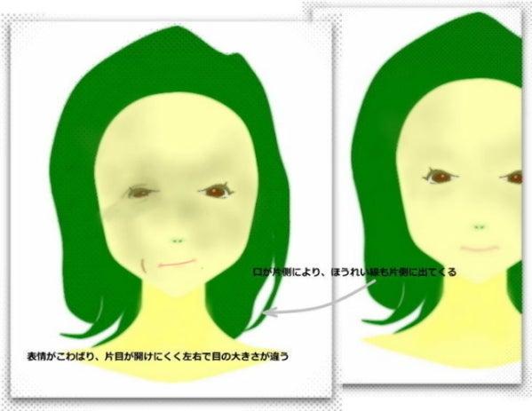 目 頬骨高さが違う、左右非対称