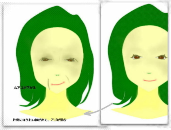 片側ほうれい線、顔の歪み原因となおし方