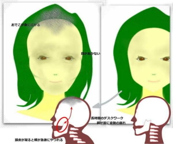 顔が長い、面長、顎が長い、原因と改善方法