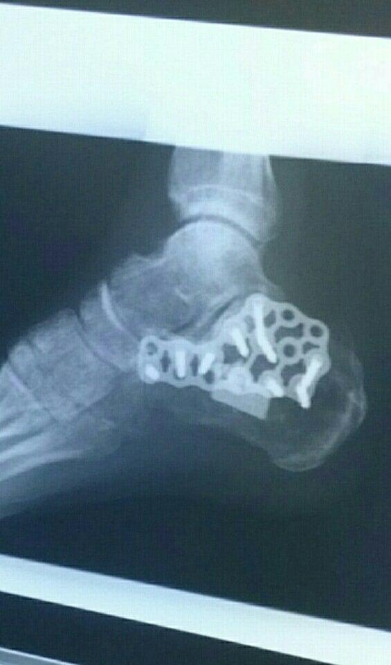 踵骨骨折のボルト取り除き手術 |...