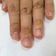 爪噛み・深爪改善:さ…