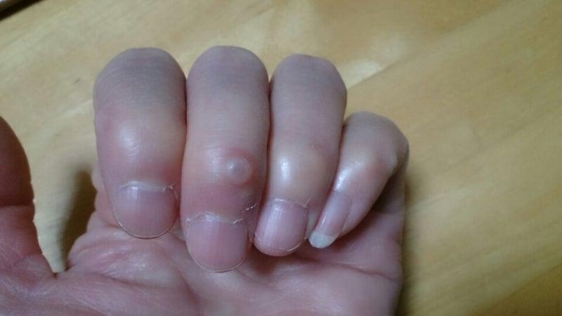 今は、中指の第一関節に水疱が出来てます。