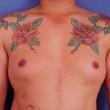 広範囲タトゥー:皮弁…