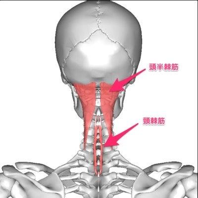 神経痛 ストレッチ 後頭 後頭部に静電気が走ったようにバチっと痛む「後頭神経痛」