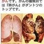 綺麗な肺と真黒な肺