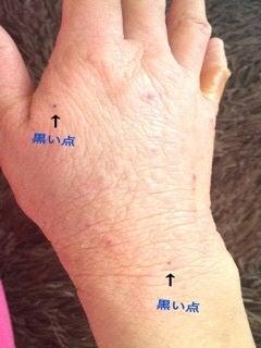 斑点 皮膚 黒い 手のしびれや腱鞘炎治療、皮膚科・形成外科の「築地皮膚と手のクリニック」