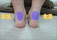 【アキレス腱断裂(軽度)】3