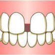 反対咬合:手術後の歯…