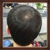 ハイブリッド美髪修正の画像