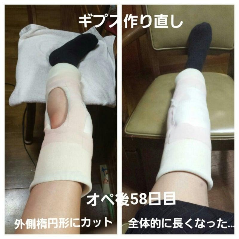 膝のお皿を骨折 16 足がビリビリ...ギプス交換 | ☔いちにちい ...