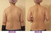 肩甲骨元の位置へ