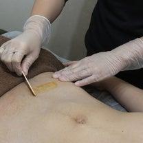 2月21日(木)当日予約可能です!男性可ブラジリアンワックス メンズフラッシュ脱の記事に添付されている画像