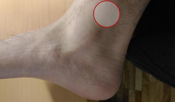 ジョギング 足首 痛い