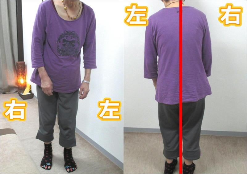 脊椎管狭窄症(腰部)坐骨神経痛や椎間板ヘルニア等2