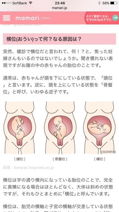 妊娠30週、ベビー横位 | Twinkle...