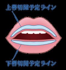 新宿ラクル美容外科クリニック 山本厚志 口唇縮小術