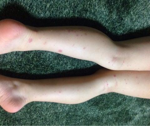 アレルギー性紫斑病について✏ | ...