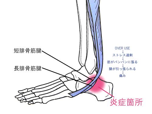 ランニング 足首 痛み