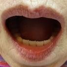 何でも食べれる総入れ歯の記事より