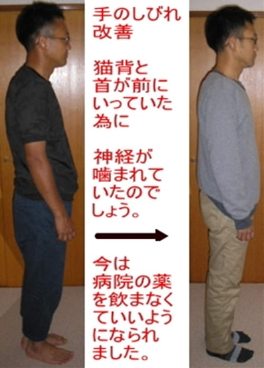 西東京市ひばりヶ丘駅の整体の手のしびれ改善で薬いらずな生活に