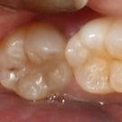 隠れた 虫歯を見つけるの記事より