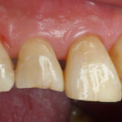 前歯の虫歯治療の記事より