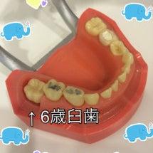 6歳臼歯について☺