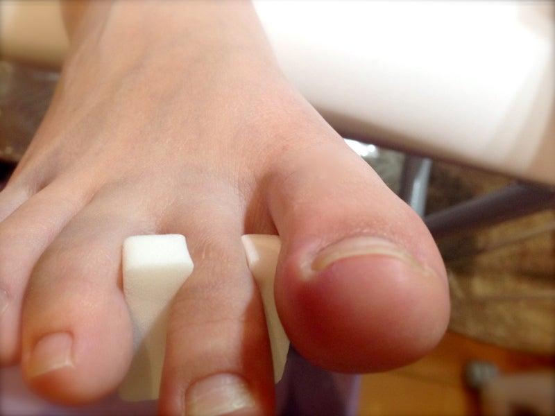 巻き爪緩和