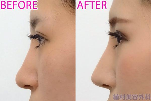 症例写真 隆鼻術