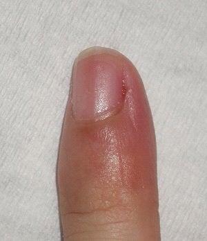 ささくれ 腫れ 指