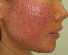 性 脂 顔 漏 皮膚 炎