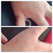 手の湿疹。