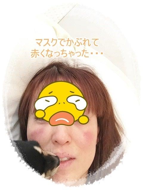 かぶれ マスク