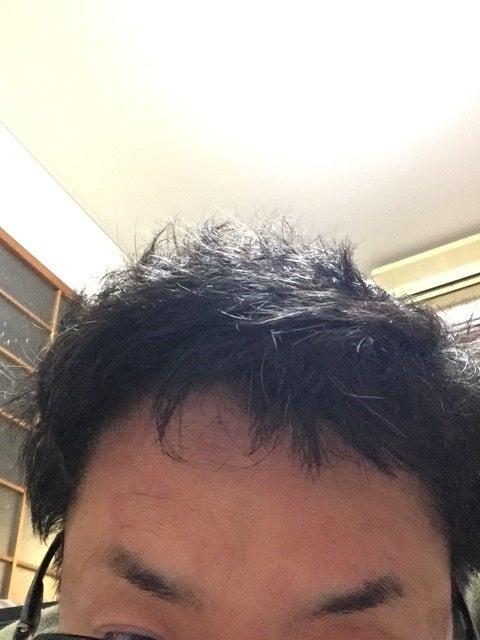 フケ 眉毛 眉毛からフケが出る?ストレスや乾燥以外の原因2つと対処法!