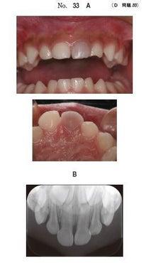 小児歯科】外傷(打撲)と歯髄電...