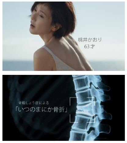 骨粗しょう症2