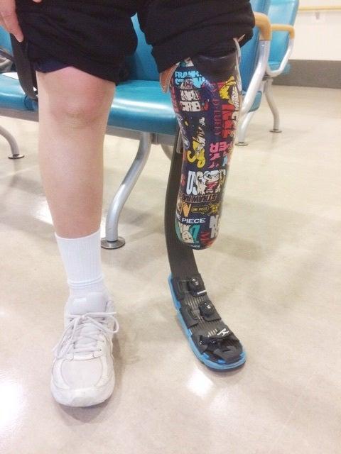 小児用疾走用下腿義足(スポーツ用下腿義足)の話。