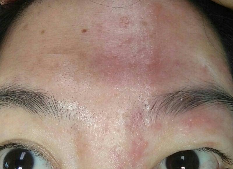 皮膚科を受診すると『顔の帯状疱疹は重症化しやすいです !