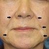 60代女性「ベビーコラーゲン(ほうれい線、口角のシワ)」注入後3ヶ月目の変化です。の画像