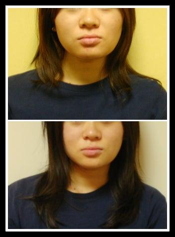 エラ張り頬骨の小顔矯正ビフォーアフター