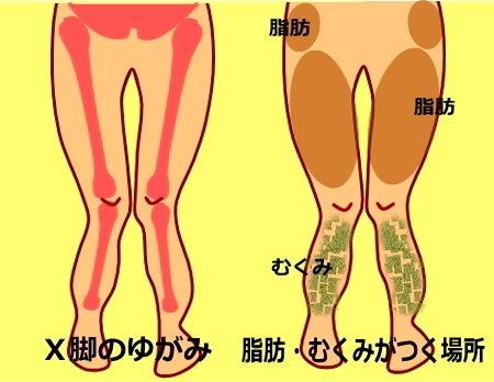 X脚のゆがみ 筋肉 脂肪 むくみの状態