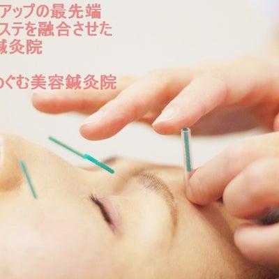 【1月前半のご予約空き状況】めぐむ美容鍼灸院♪の記事に添付されている画像