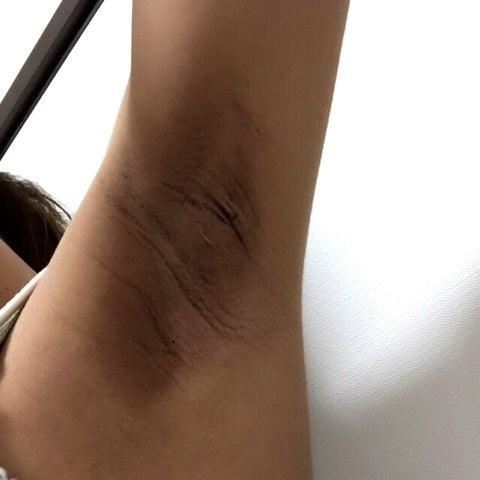 妊娠 脇 黒ずみ 【医師監修】妊娠中のワキや乳首の黒ずみの原因 スキンケア大学