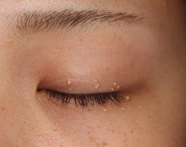 ポツポツ 白い 目 周り の