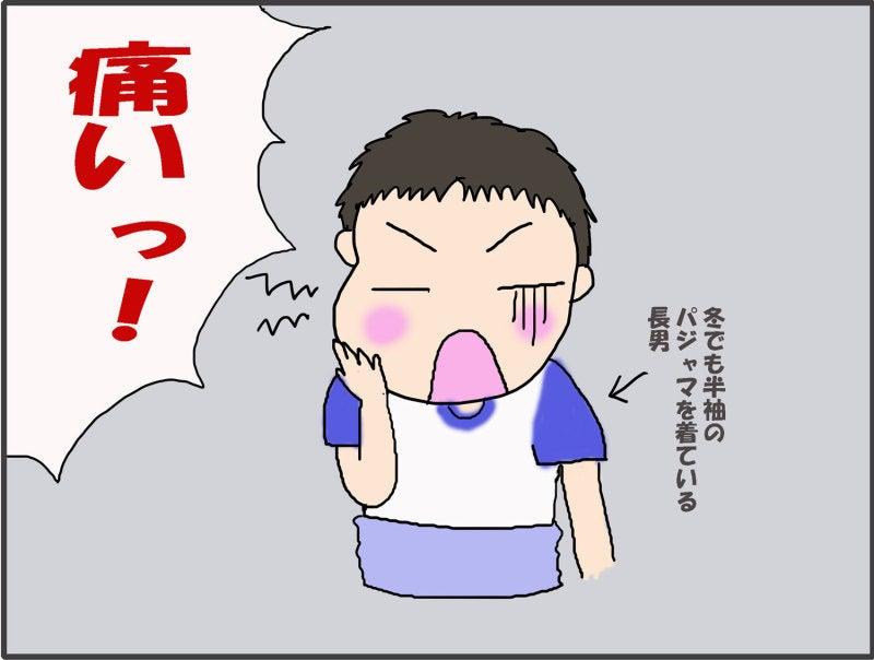 痛み おたふく 風邪