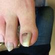 足の巻き爪❗