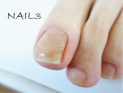 あなたの足の爪 このような横線 横溝がありませんか 大阪和泉市
