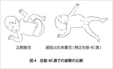 反射 頚 性 性 非対称 緊張