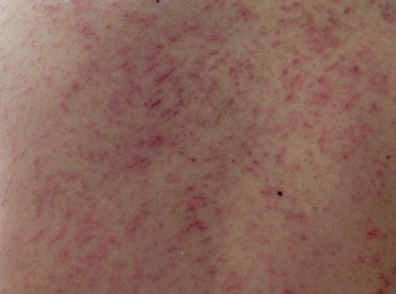 赤い斑点 Part2   ノンの闘病日...